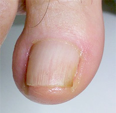 början på nagelsvamp